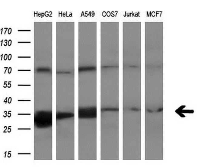 PECR Mouse anti-Human, Clone: OTI1C9, liquid, TrueMAB  100 µL; Unconjugated