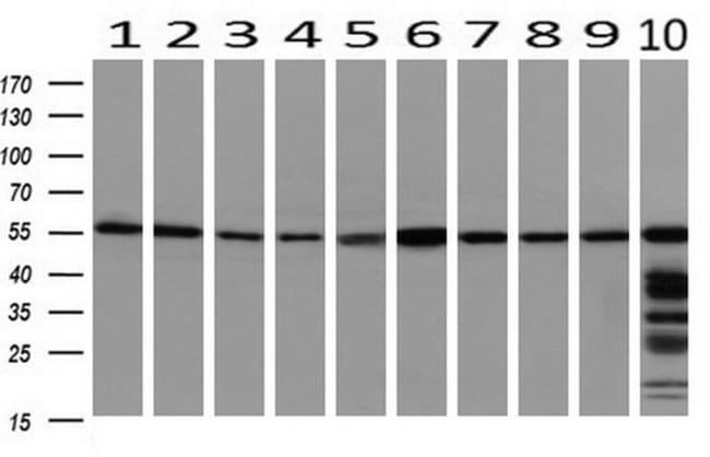 PEPD Mouse anti-Human, Clone: OTI1B7, liquid, TrueMAB  100 µL; Unconjugated