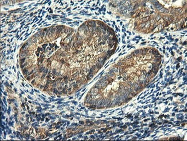 PFKP Mouse anti-Human, Clone: OTI2F2, liquid, TrueMAB  100 µL; Unconjugated