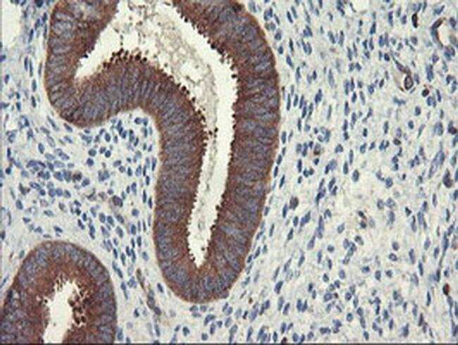 PFKP Mouse anti-Human, Clone: OTI3H8, liquid, TrueMAB  100 µL; Unconjugated