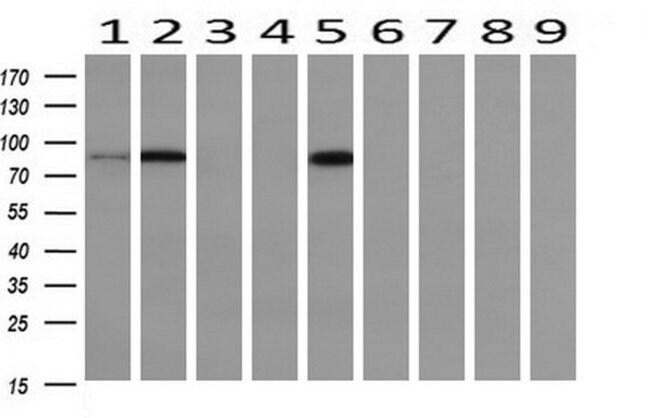 PFKP Mouse anti-Human, Mouse, Rat, Clone: OTI1D6, liquid, TrueMAB  100