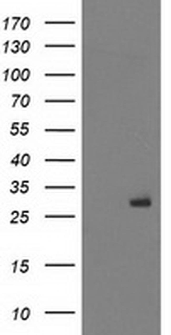 PGAM2 Mouse anti-Human, Clone: OTI1E12, liquid, TrueMAB  100 µL; Unconjugated