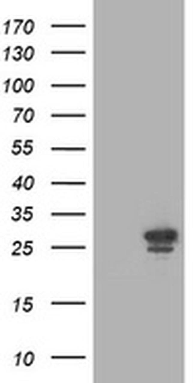 PGAM2 Mouse anti-Human, Clone: OTI1C11, liquid, TrueMAB  100 µL; Unconjugated