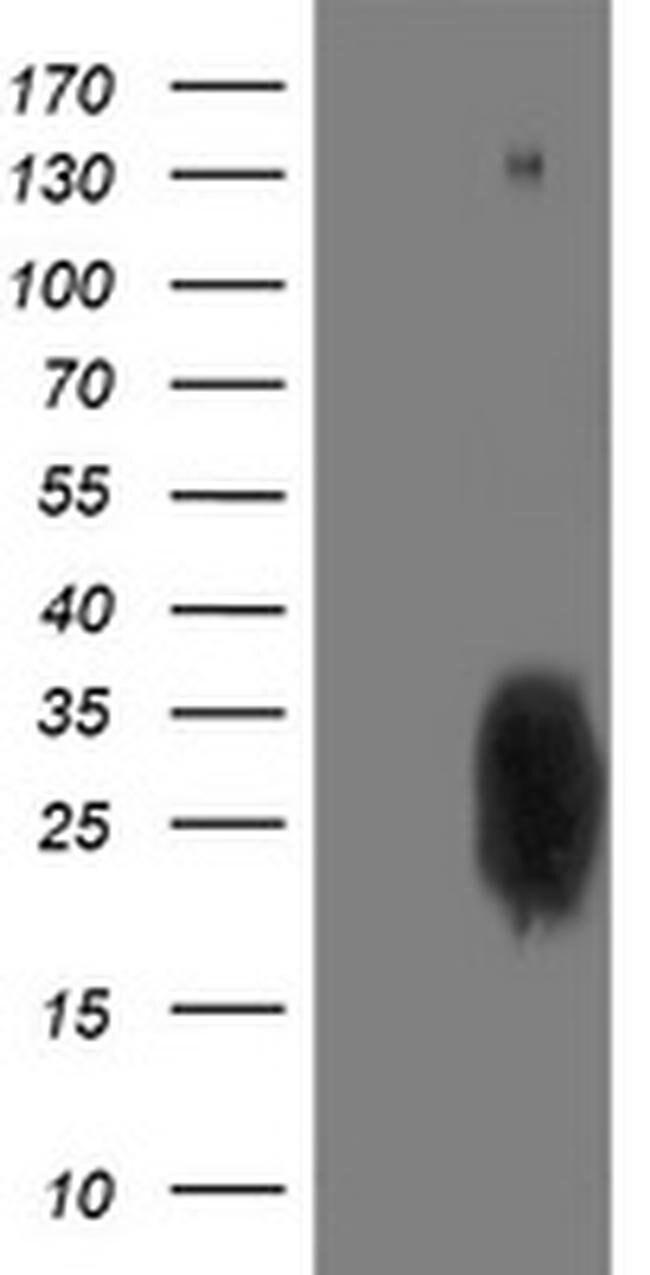 PGAM2 Mouse anti-Human, Clone: OTI1C2, liquid, TrueMAB  100 µL; Unconjugated