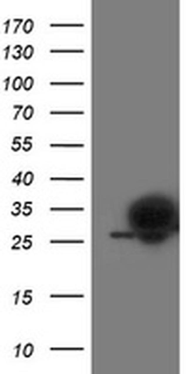 PGAM2 Mouse anti-Human, Mouse, Clone: OTI4E9, liquid, TrueMAB  100 µL;