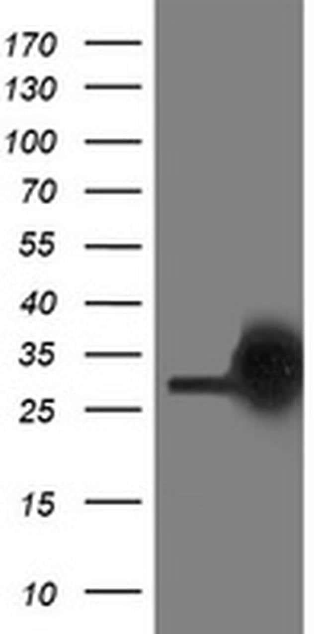 PGAM2 Mouse anti-Canine, Human, Mouse, Clone: OTI2H10, liquid, TrueMAB