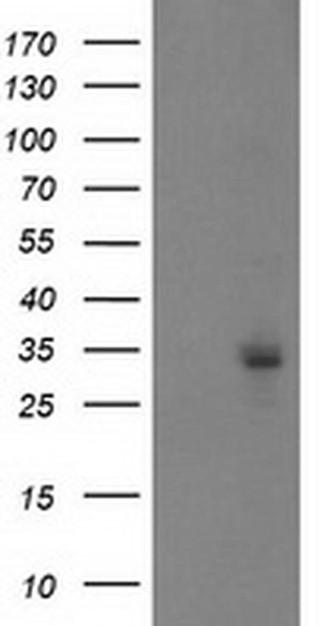 PGAM2 Mouse anti-Canine, Human, Mouse, Clone: OTI4B12, liquid, TrueMAB