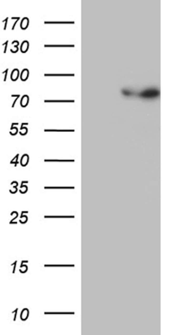 PGBD3 Mouse anti-Human, Clone: OTI4G9, lyophilized, TrueMAB  100 µg;