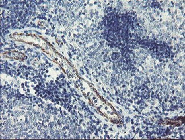 PGM3 Mouse anti-Human, Clone: OTI1B8, liquid, TrueMAB  100 µL; Unconjugated