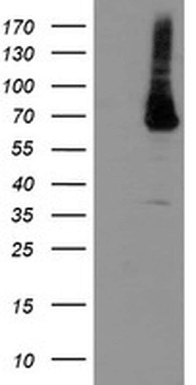 PGM3 Mouse anti-Human, Clone: OTI5C6, liquid, TrueMAB  100 µL; Unconjugated
