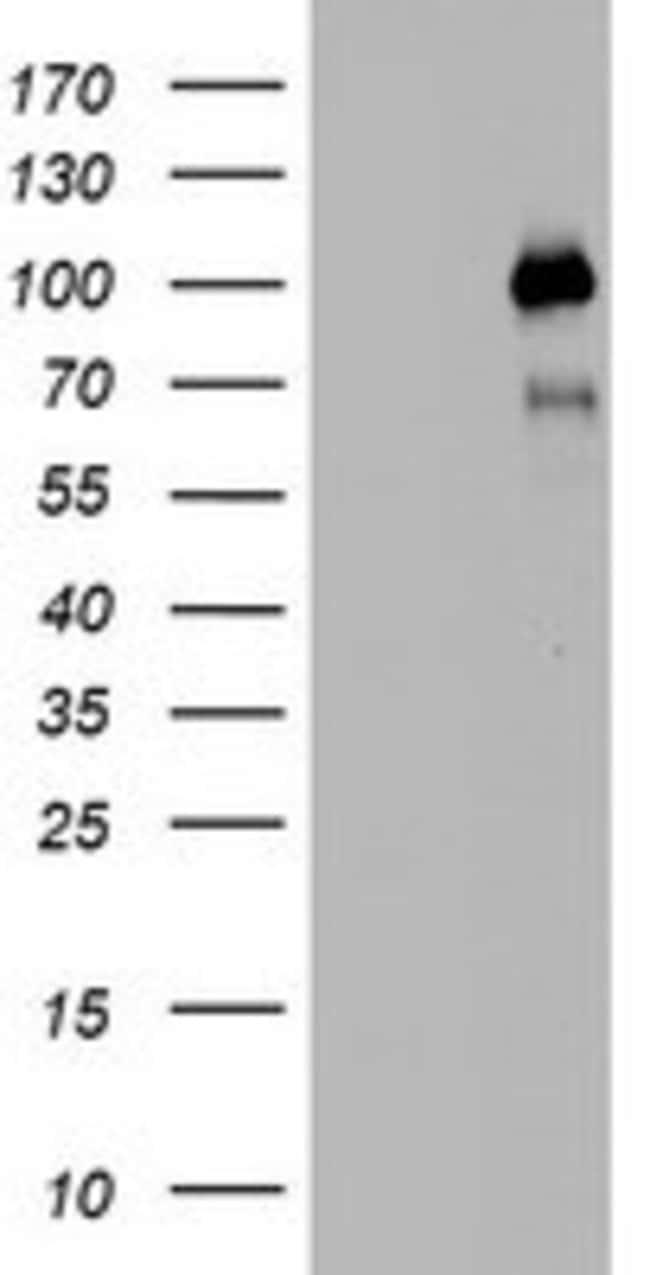 PGR Mouse anti-Human, Clone: OTI6E3, lyophilized, TrueMAB  100 µg;