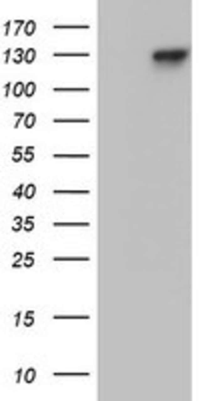 PGR Mouse anti-Human, Clone: OTI24A2, lyophilized, TrueMAB  100 µg;