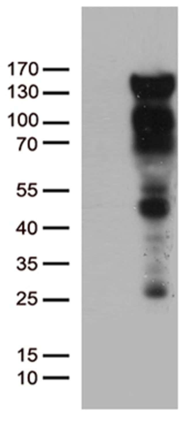 PGR Mouse anti-Human, Clone: OTI18B12, lyophilized, TrueMAB  100 µg;