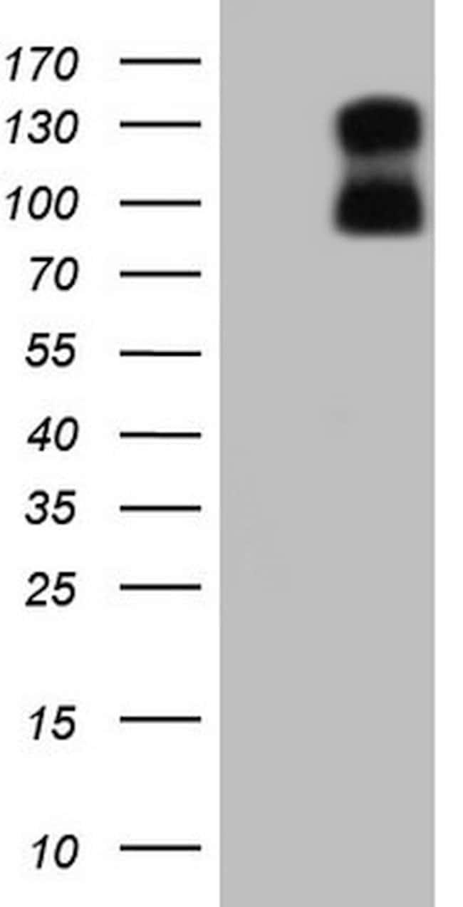 PGR Mouse anti-Human, Clone: OTI16H2, lyophilized, TrueMAB  100 µg;