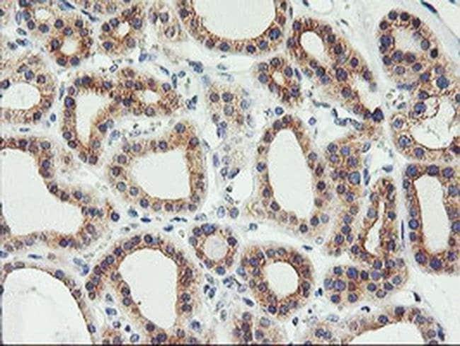 PHF21B Mouse anti-Human, Clone: OTI3D1, liquid, TrueMAB  100 µL; Unconjugated