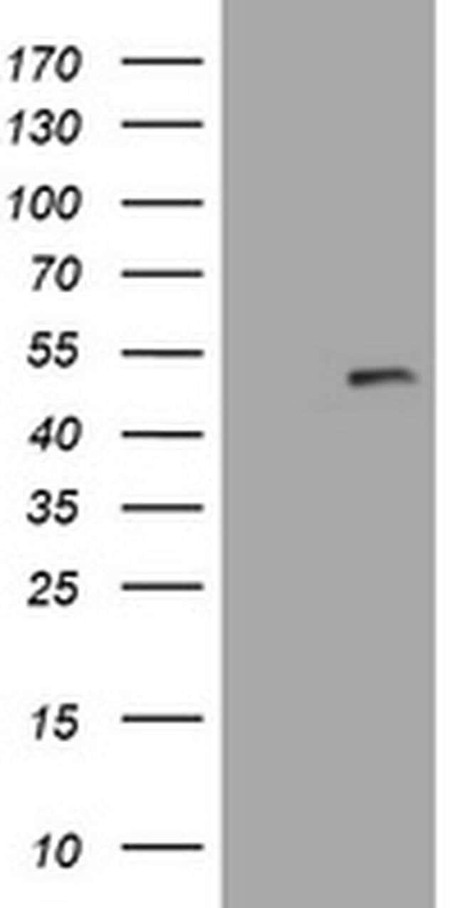PHF7 Mouse anti-Human, Clone: OTI1F7, liquid, TrueMAB  100 µL; Unconjugated