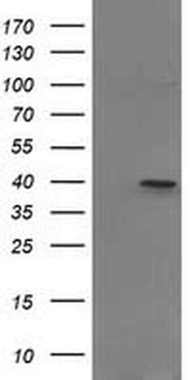 PIH1D2 Mouse anti-Human, Clone: OTI5G9, liquid, TrueMAB  100 µL; Unconjugated