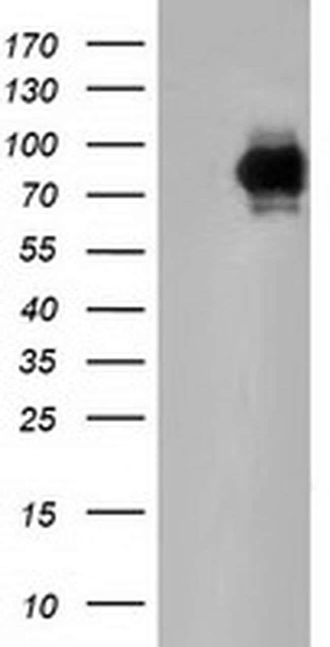 PIK3AP1 Mouse anti-Human, Clone: OTI5A5, liquid, TrueMAB  100 µL;