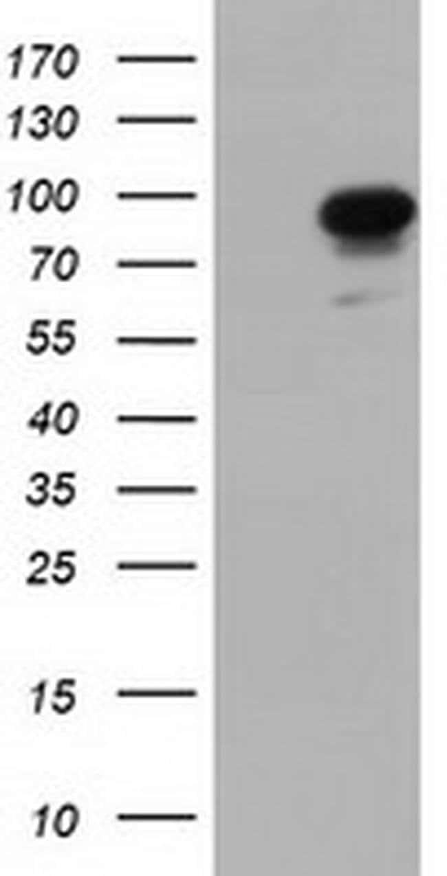 PIK3AP1 Mouse anti-Human, Clone: OTI7B12, liquid, TrueMAB  30 µL;