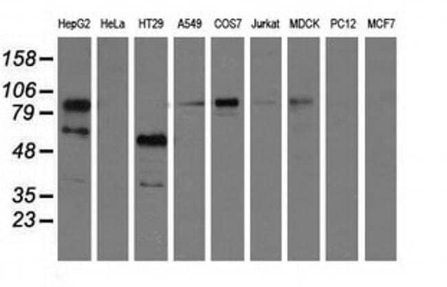 PIK3AP1 Mouse anti-Canine, Human, Clone: OTI7G9, liquid, TrueMAB  100 µL;