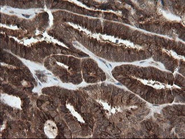 PIK3CG Mouse anti-Human, Clone: OTI2B1, liquid, TrueMAB  100 µL; Unconjugated