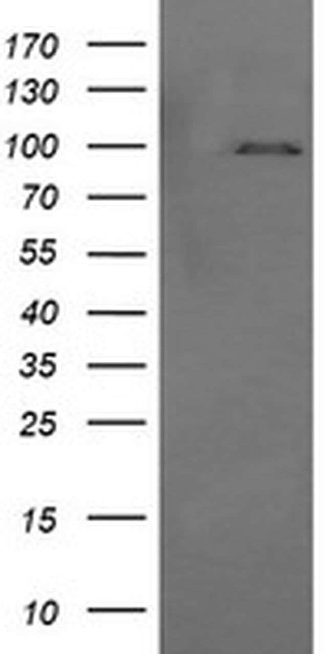 PIK3R5 Mouse anti-Canine, Human, Mouse, Rat, Clone: OTI2A6, liquid, TrueMAB