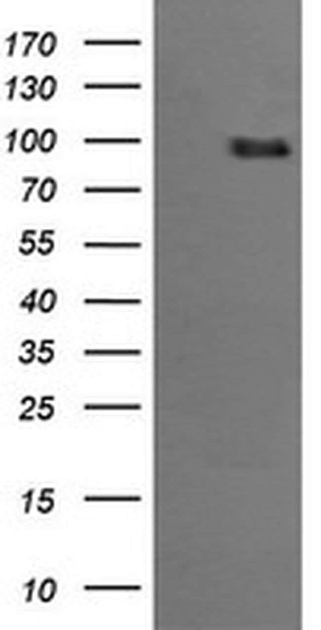 PIK3R5 Mouse anti-Human, Clone: OTI4C12, liquid, TrueMAB  100 µL;