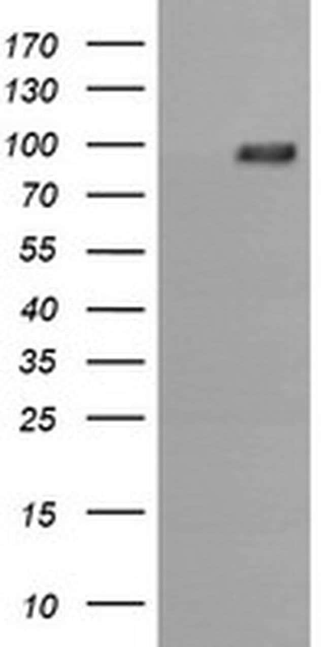 PIK3R5 Mouse anti-Canine, Human, Mouse, Rat, Clone: OTI2C6, liquid, TrueMAB
