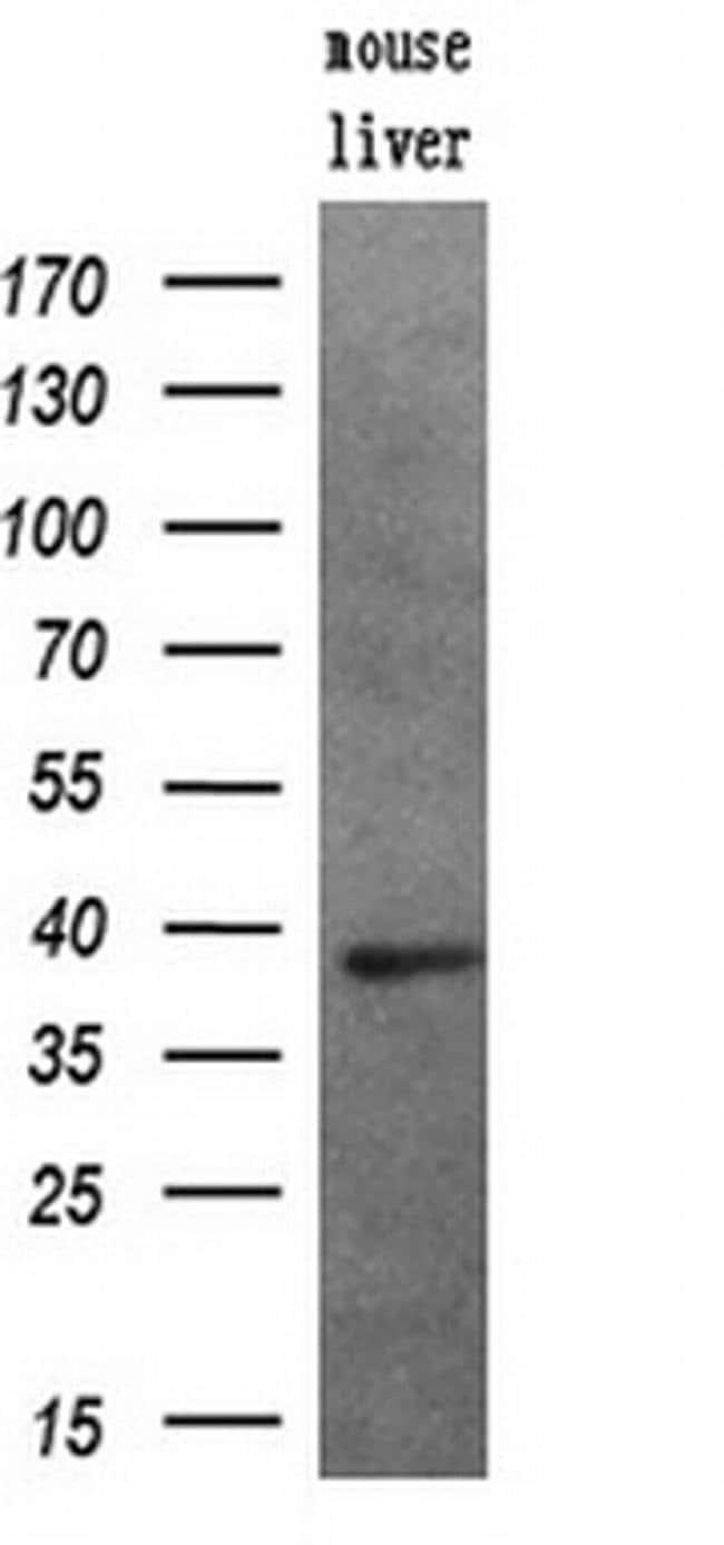 PIM2 Mouse anti-Human, Clone: OTI8G10, liquid, TrueMAB  100 µL; Unconjugated