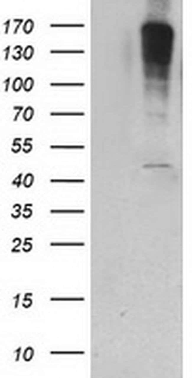 PIP4K2A Mouse anti-Human, Clone: OTI1B2, liquid, TrueMAB  100 µL;