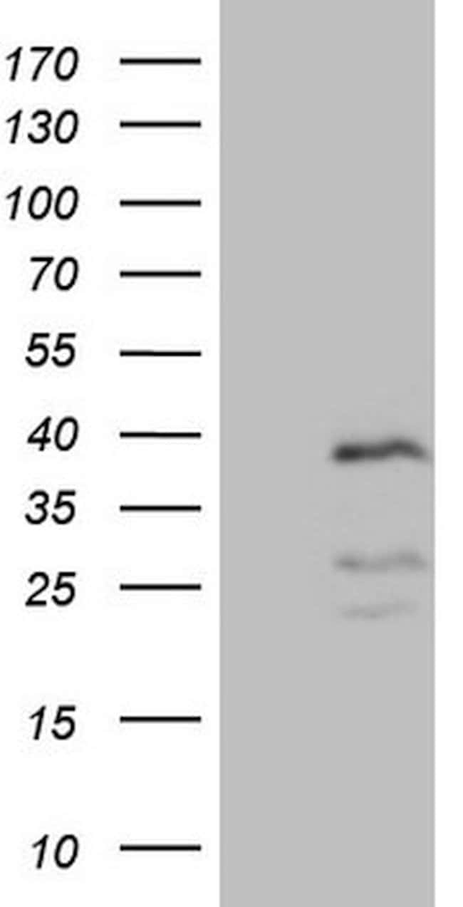 PISD Mouse anti-Human, Clone: OTI4G5, lyophilized, TrueMAB  100 µg;