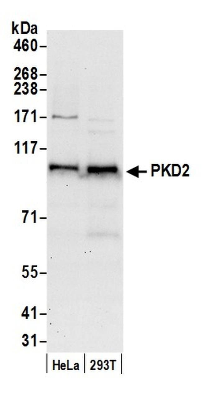 PKD2, Polyclonal, Bethyl Laboratories  100 µL; Unconjugated