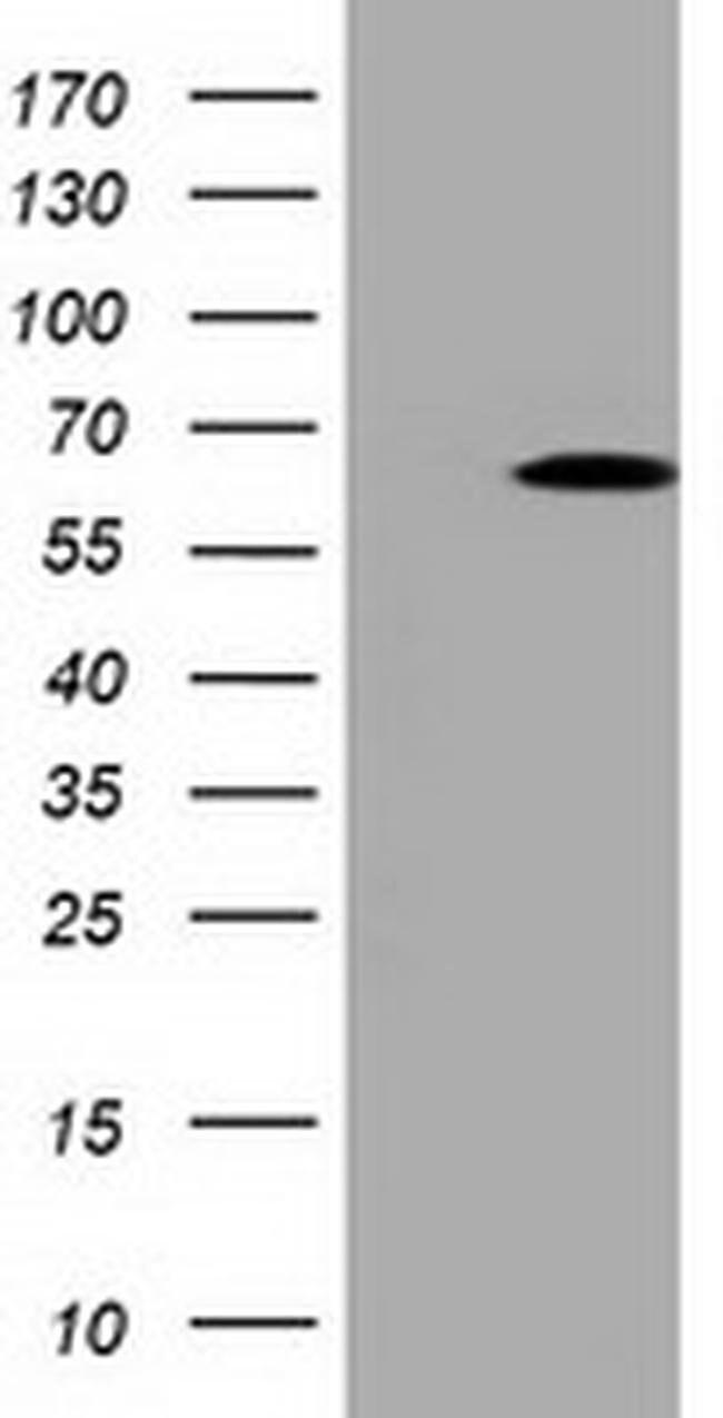PKLR Mouse anti-Human, Clone: OTI1A5, liquid, TrueMAB  100 µL; Unconjugated