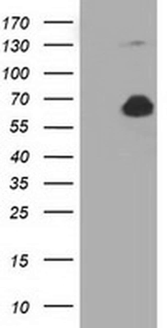 PKLR Mouse anti-Human, Clone: OTI1H9, liquid, TrueMAB  100 µL; Unconjugated