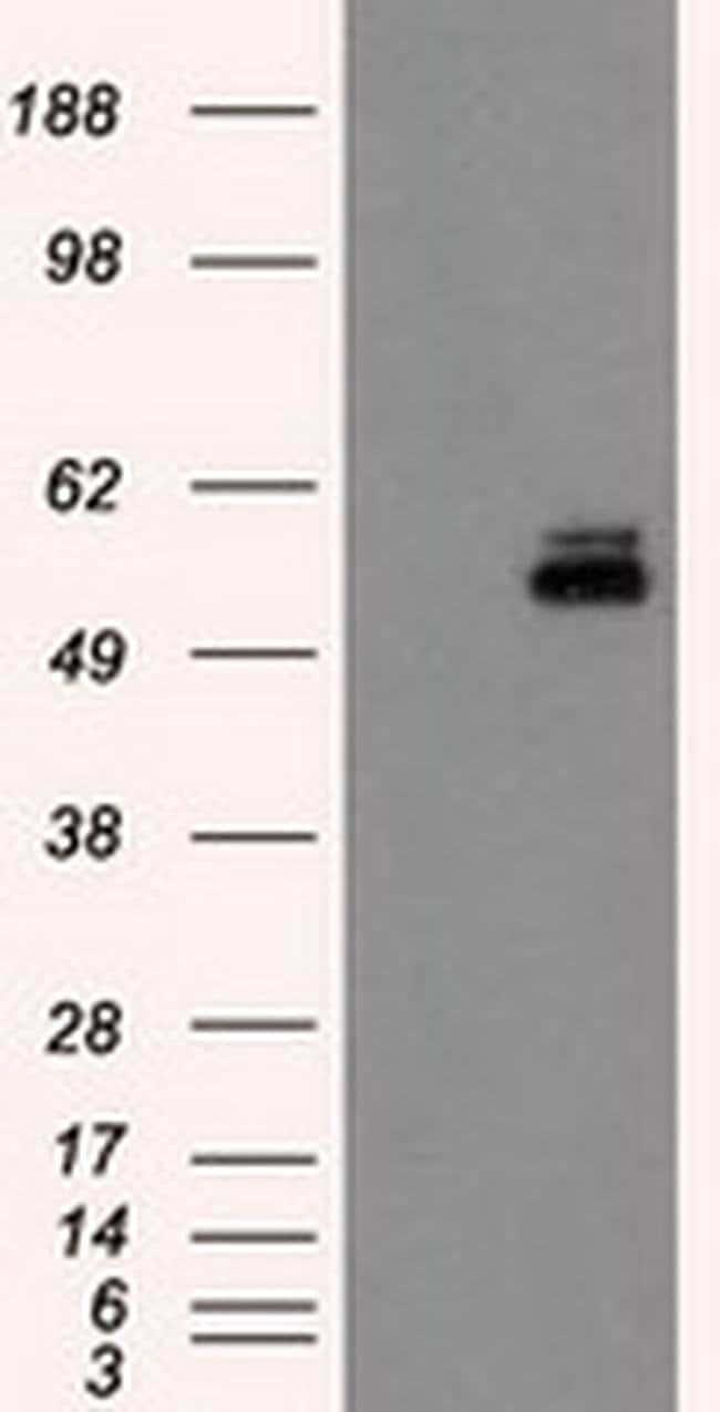 PKMYT1 Mouse anti-Human, Clone: OTI2B4, liquid, TrueMAB  100 µL; Unconjugated