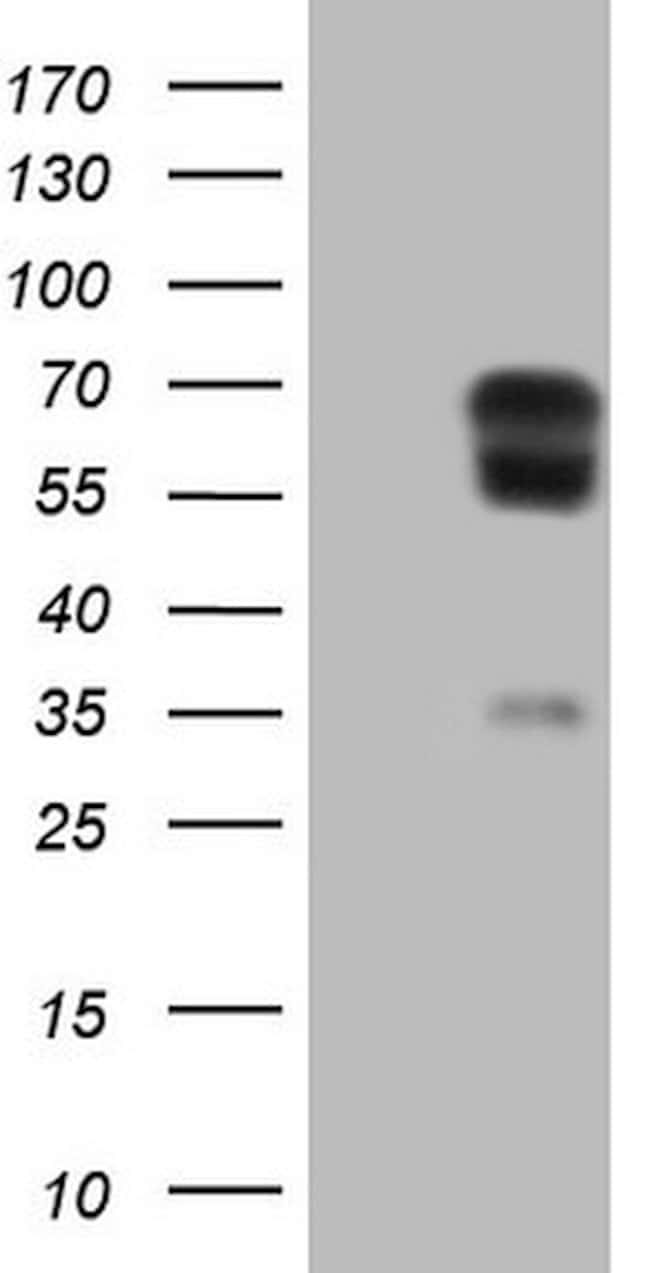 PLAT Mouse anti-Human, Clone: OTI3H3, lyophilized, TrueMAB  100 µg;