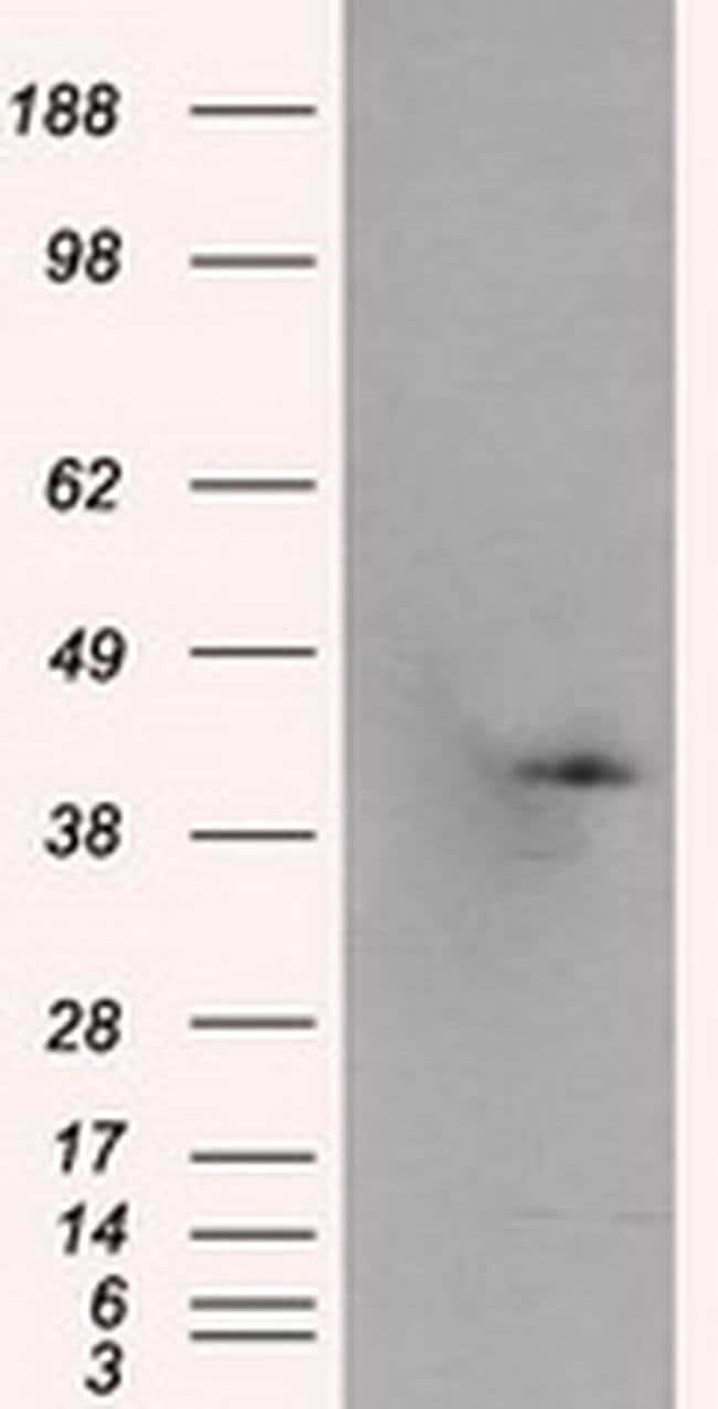 PLEK Mouse anti-Human, Clone: OTI6B5, liquid, TrueMAB  100 µL; Unconjugated