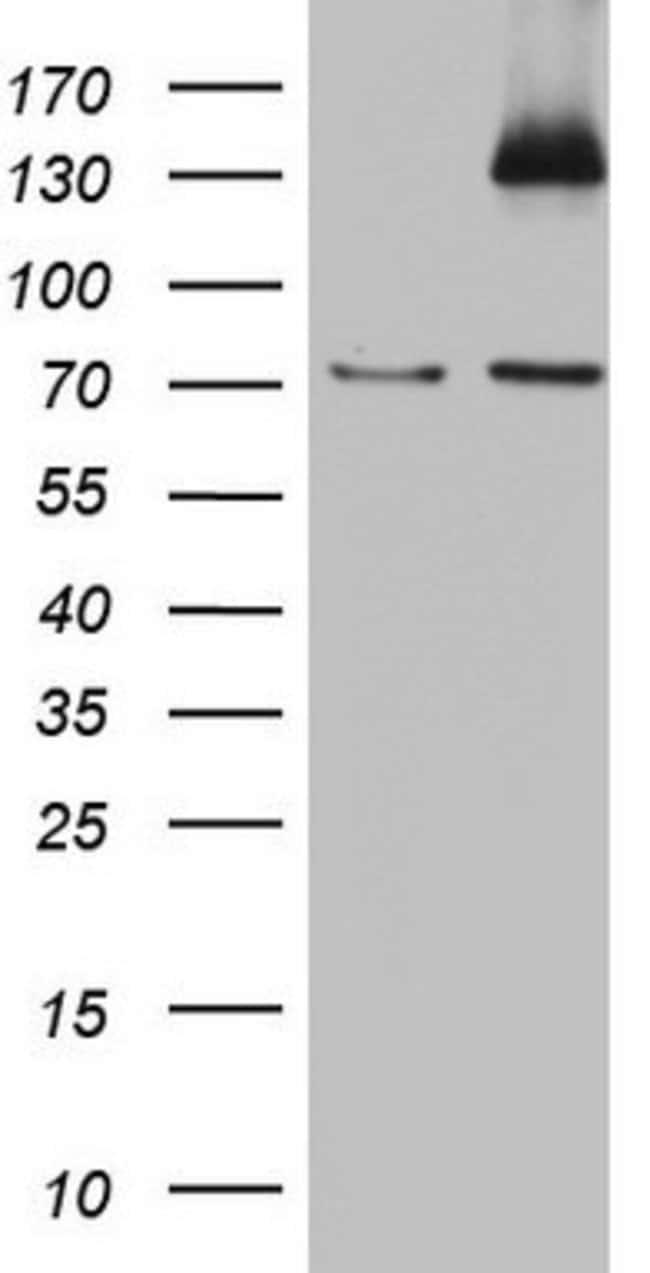 PMEL Mouse anti-Human, Clone: OTI6D5, lyophilized, TrueMAB  100 µg;