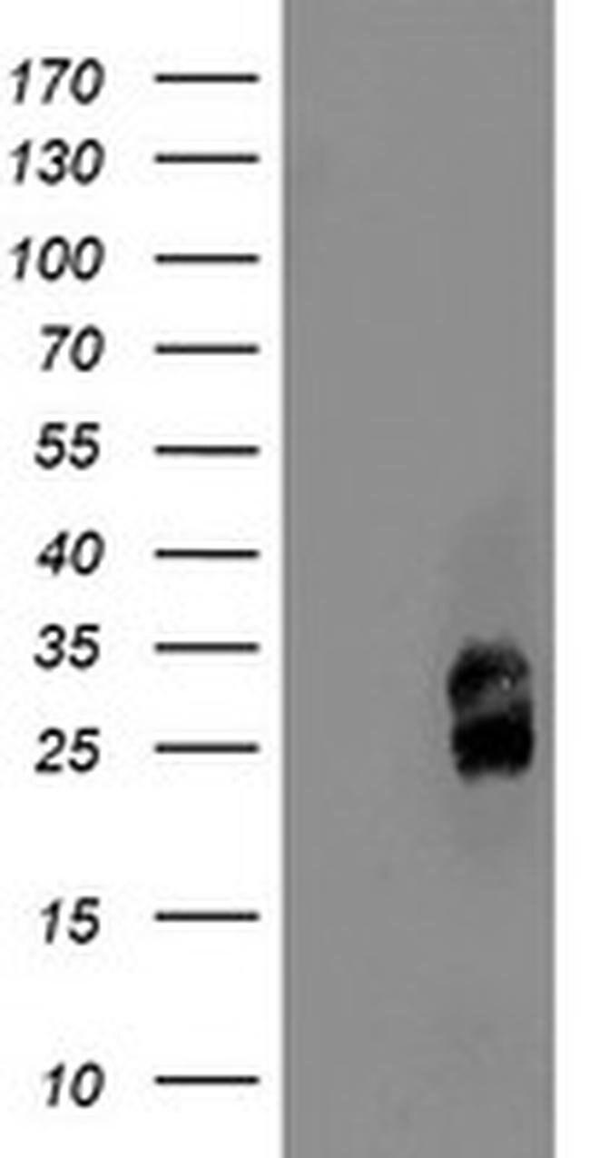 PMVK Mouse anti-Human, Mouse, Clone: OTI2D1, liquid, TrueMAB  100 µL;