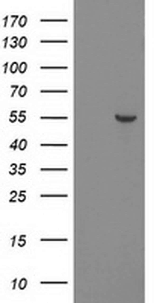 PNMA3 Mouse anti-Human, Clone: OTI1C3, liquid, TrueMAB  100 µL; Unconjugated