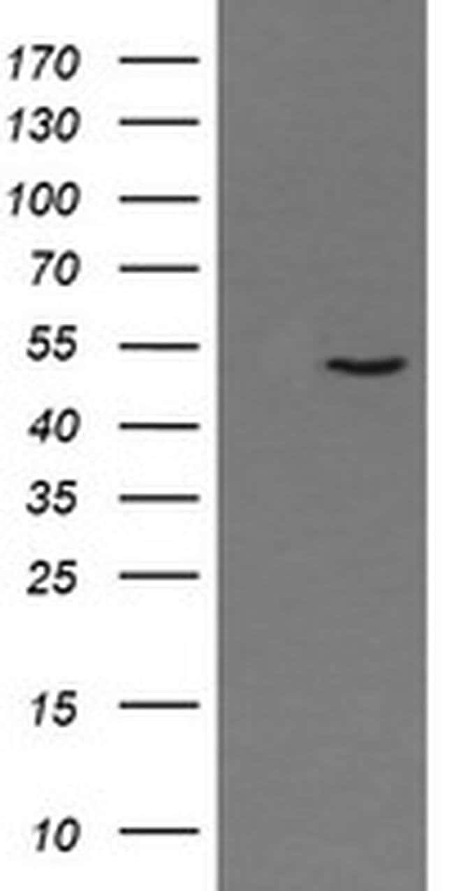 PNMA3 Mouse anti-Human, Clone: OTI2E6, liquid, TrueMAB  100 µL; Unconjugated