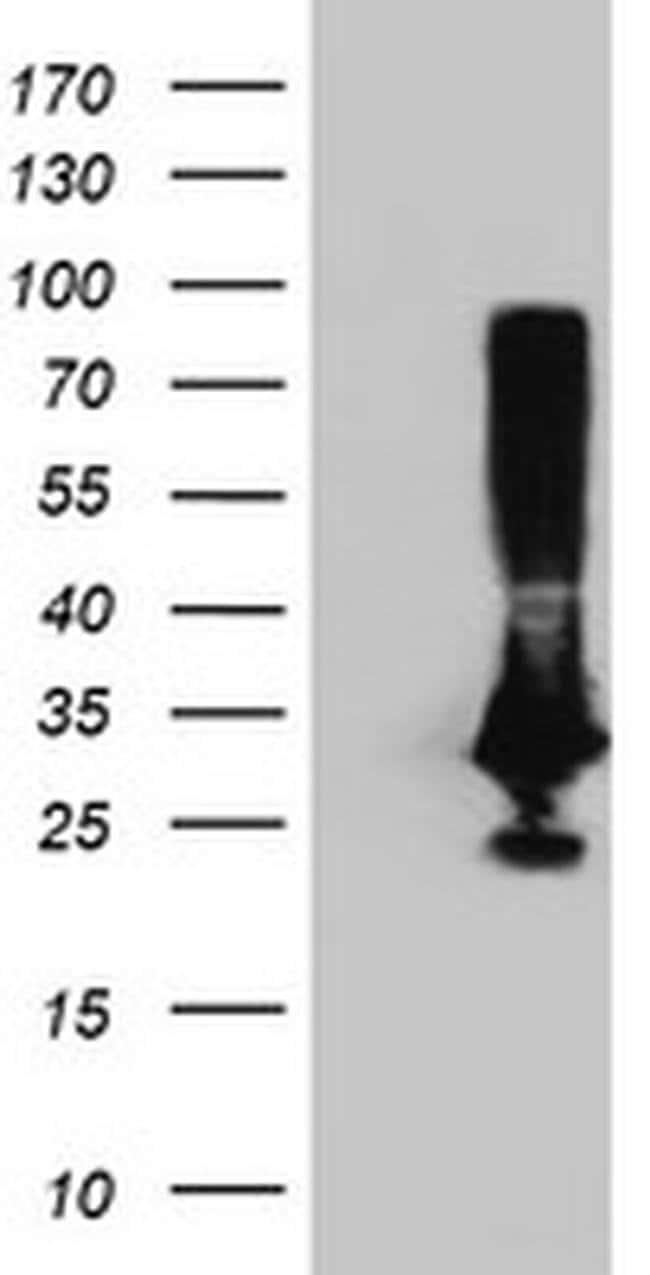 PNMT Mouse anti-Human, Clone: OTI2F3, liquid, TrueMAB  100 µL; Unconjugated