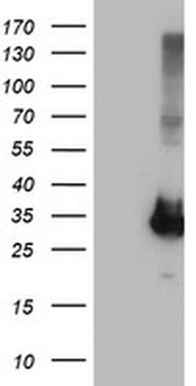 PNMT Mouse anti-Human, Clone: OTI2A5, liquid, TrueMAB  100 µL; Unconjugated