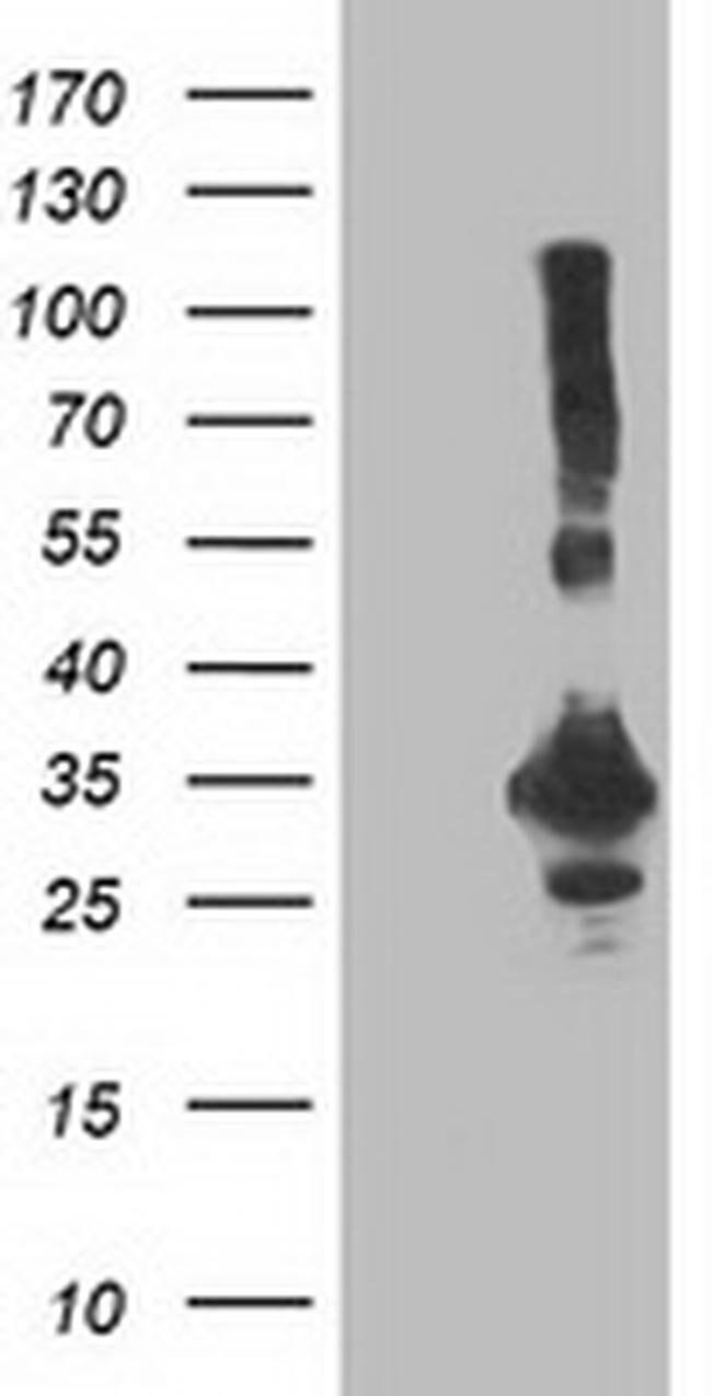 PNMT Mouse anti-Human, Clone: OTI2A3, liquid, TrueMAB  100 µL; Unconjugated