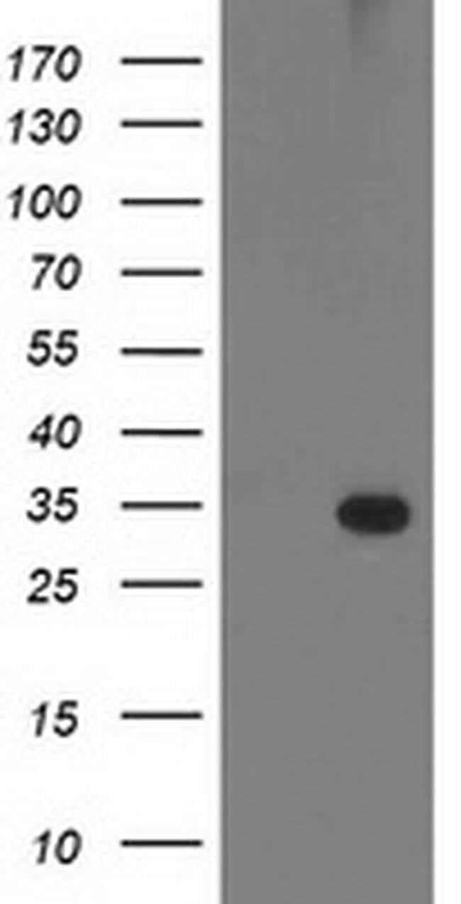 PNMT Mouse anti-Human, Clone: OTI2F2, liquid, TrueMAB  100 µL; Unconjugated