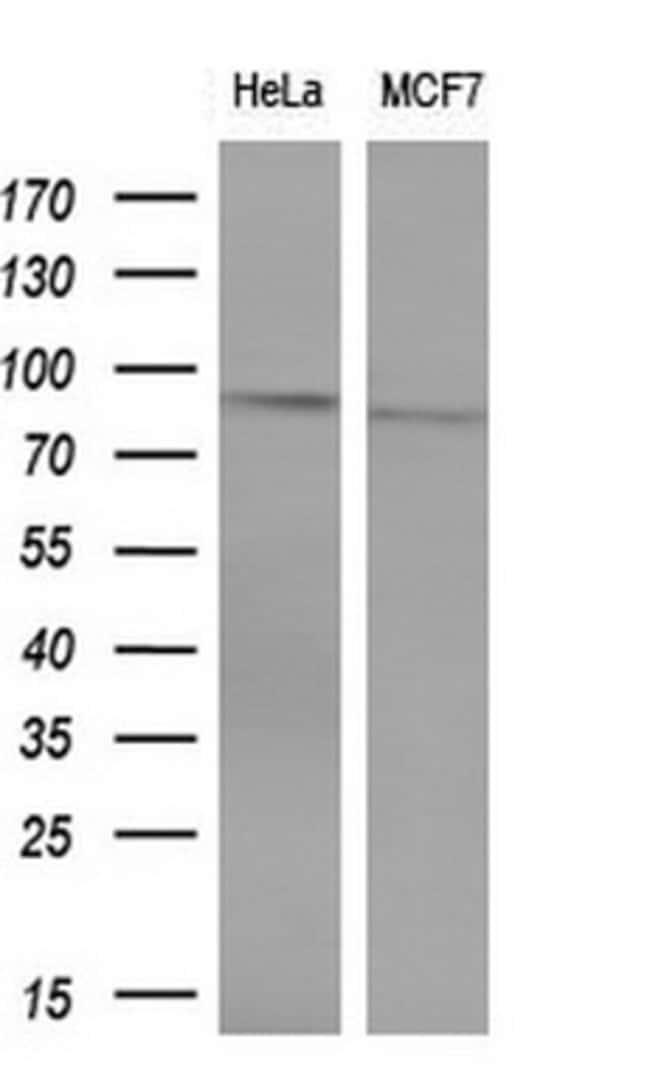 POLI Mouse anti-Human, Clone: OTI1C8, lyophilized, TrueMAB  100 µg;