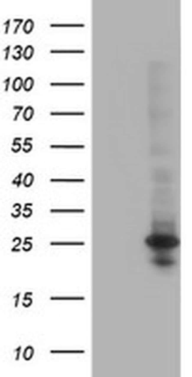 POLR2E Mouse anti-Canine, Human, Mouse, Rat, Clone: OTI3B5, liquid, TrueMAB