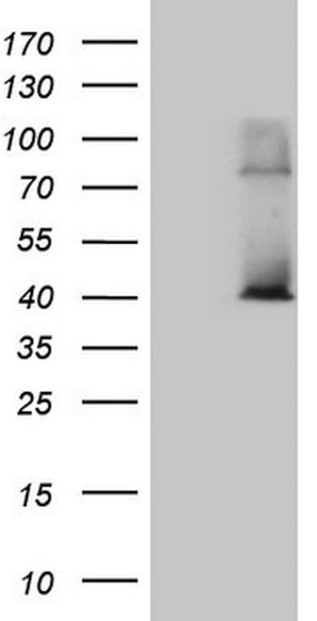 POLR3H Mouse anti-Human, Clone: OTI5A12, lyophilized, TrueMAB  100 µg;