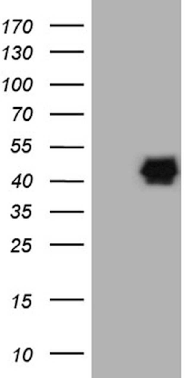 PON3 Mouse anti-Human, Clone: OTI1B12, lyophilized, TrueMAB  100 µg;