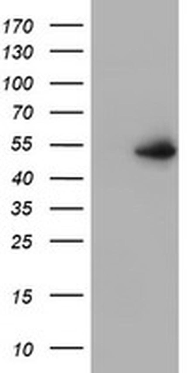 PPARA Mouse anti-Human, Clone: OTI3G3, liquid, TrueMAB  100 µL; Unconjugated